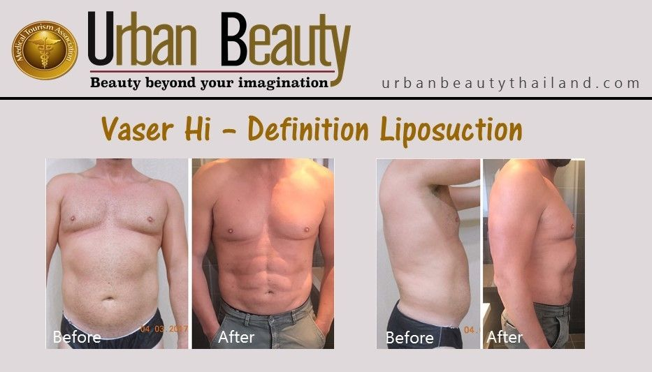 Low Cost Vaser Ultrasound Liposuction Vaser Hi Def Bangkok