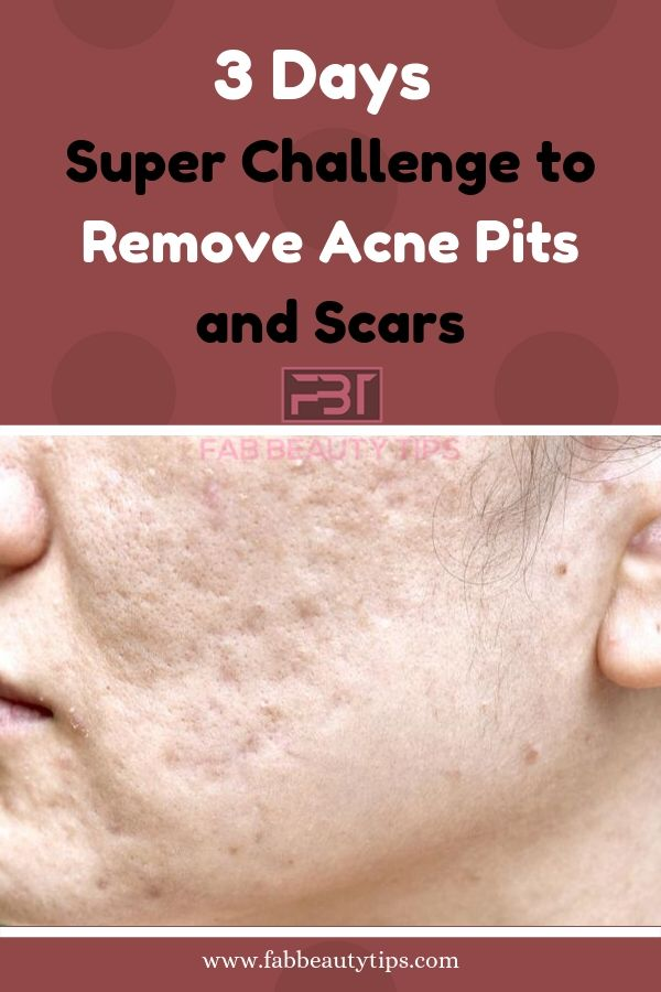 Remove Acne Scars in 3 Days with this Home Remedy is part of Remove acne, Acne scars, Acne scar removal, Acne pit scars, Acne scaring treatment, Acne scars treatment - Are you tired of Acne Scars  Then this Article is for you  Try these simple Home Remedies to remove acne scars in 3 days