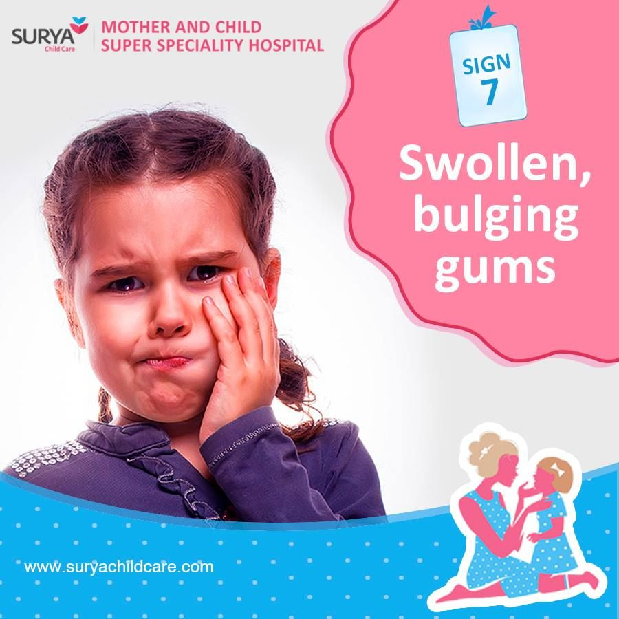 Prevent your child from #swollen gums #while_teething ...