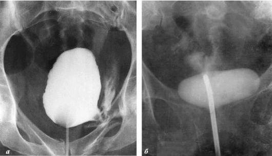 Рубрика: Varice pe spatele uterului