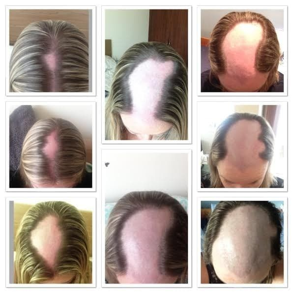 12 Things People Living With Alopecia Want You To Know Alopecia