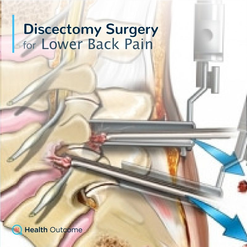 Discectomy Surgery for Lower Back Pain — Discectomy surgery is ...