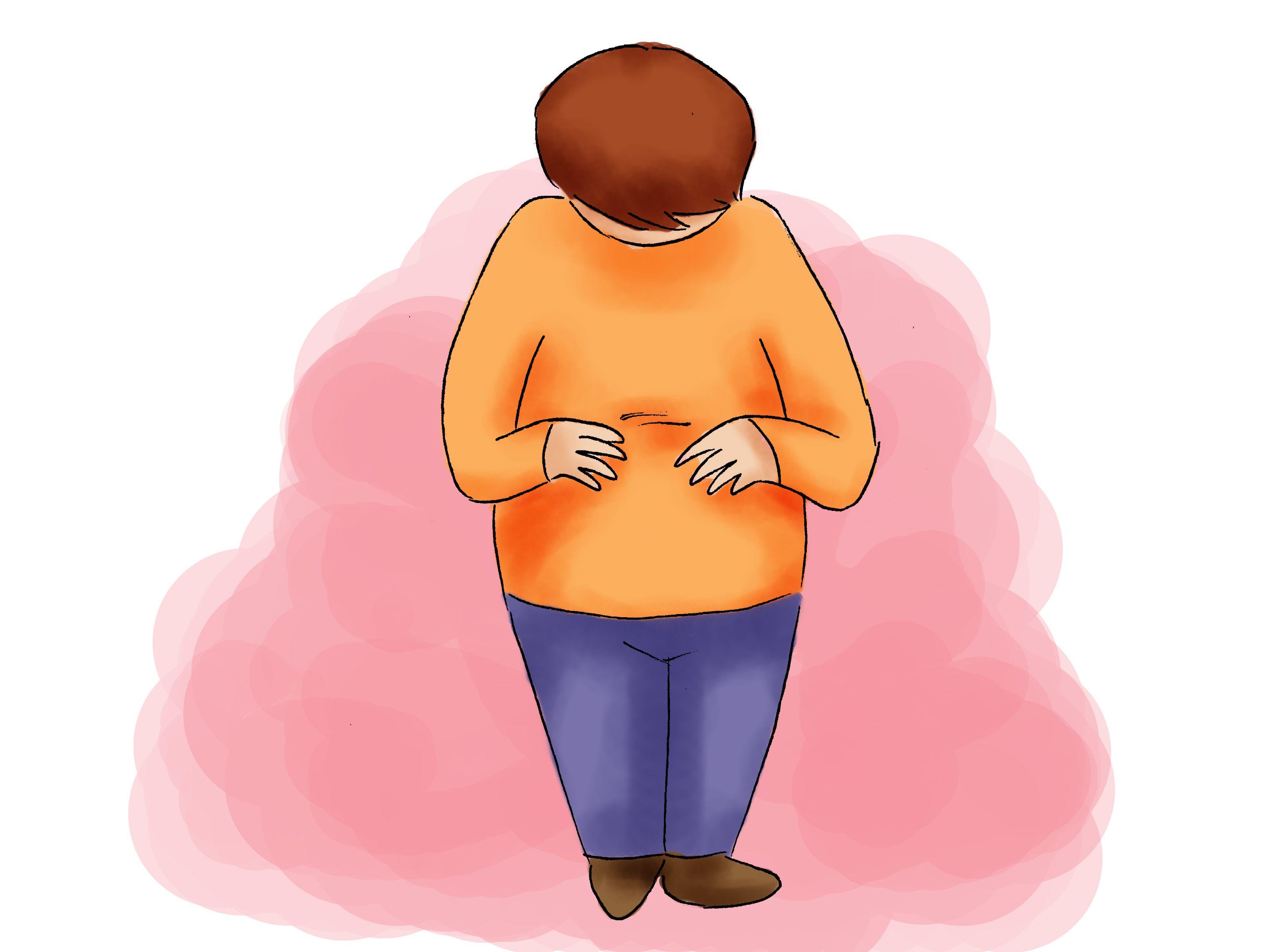 Une augmentation chronique du taux de potassium (aussi appelée hyperkaliémie) est le signe d'un mauvais fonctionnement des reins. Cependant, elle peut aussi être provoquée par certains médicaments, des blessures aigües ou une crise grave de...