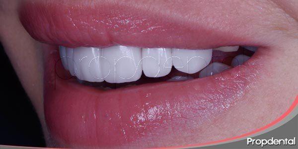 Carillas De Porcelana Precio Carillas De Porcelana En Propdental Carillas De Porcelana Carillas Dentales Dientes Perfectos