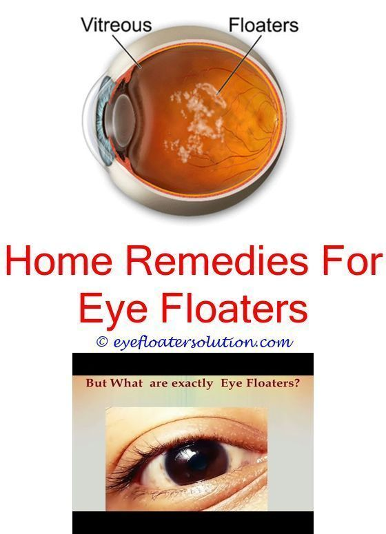 Eye Floaters Affecting Driving Seeing Black Floaters In Right Eye Can Heavy Metals Cause Eye Floaters Light Eye Floaters Treatment Allergy Eyes Diabetes Eyes