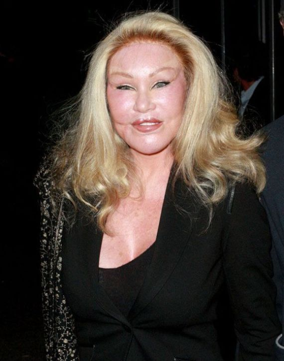 jocelyn wildenstein 2012 new face wwwpixsharkcom