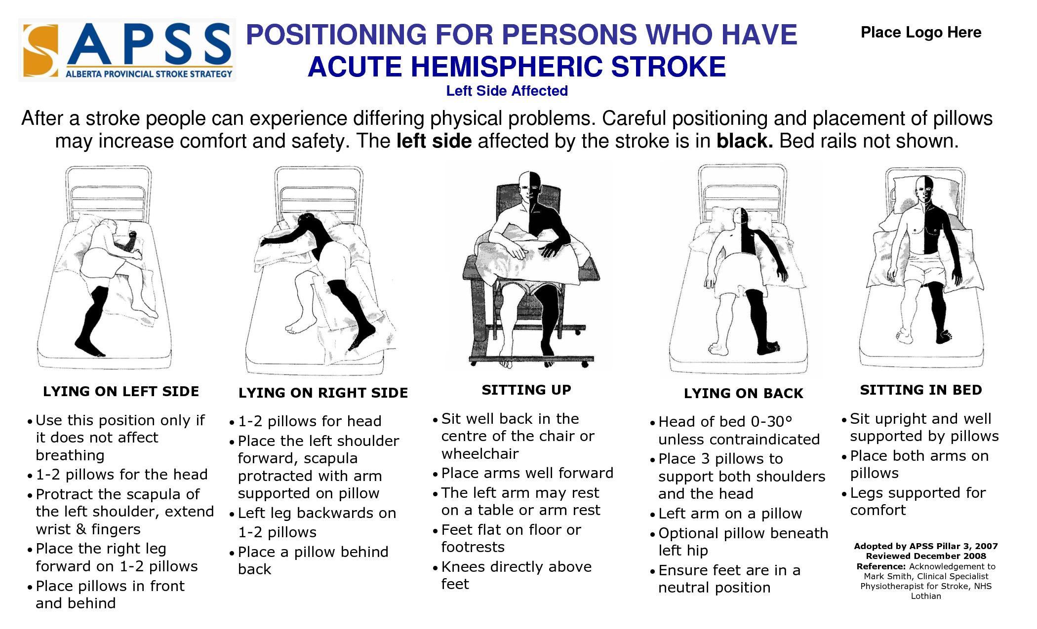 Stroke Patient Positioning Poster (eft side affects