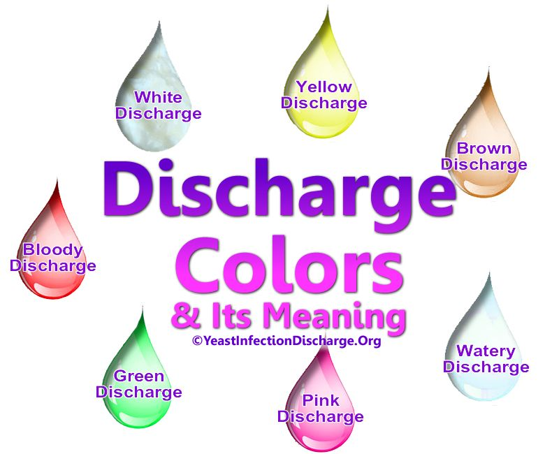 Yeast Infection Discharge Color | studiess | Pinterest