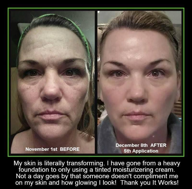 So Here Are Her Before After Pics Showing This Transformation She Used The Cleanser Gel Daily Exfoliating Peel Ev It Works Facials Chemical Peel Facial Wrap