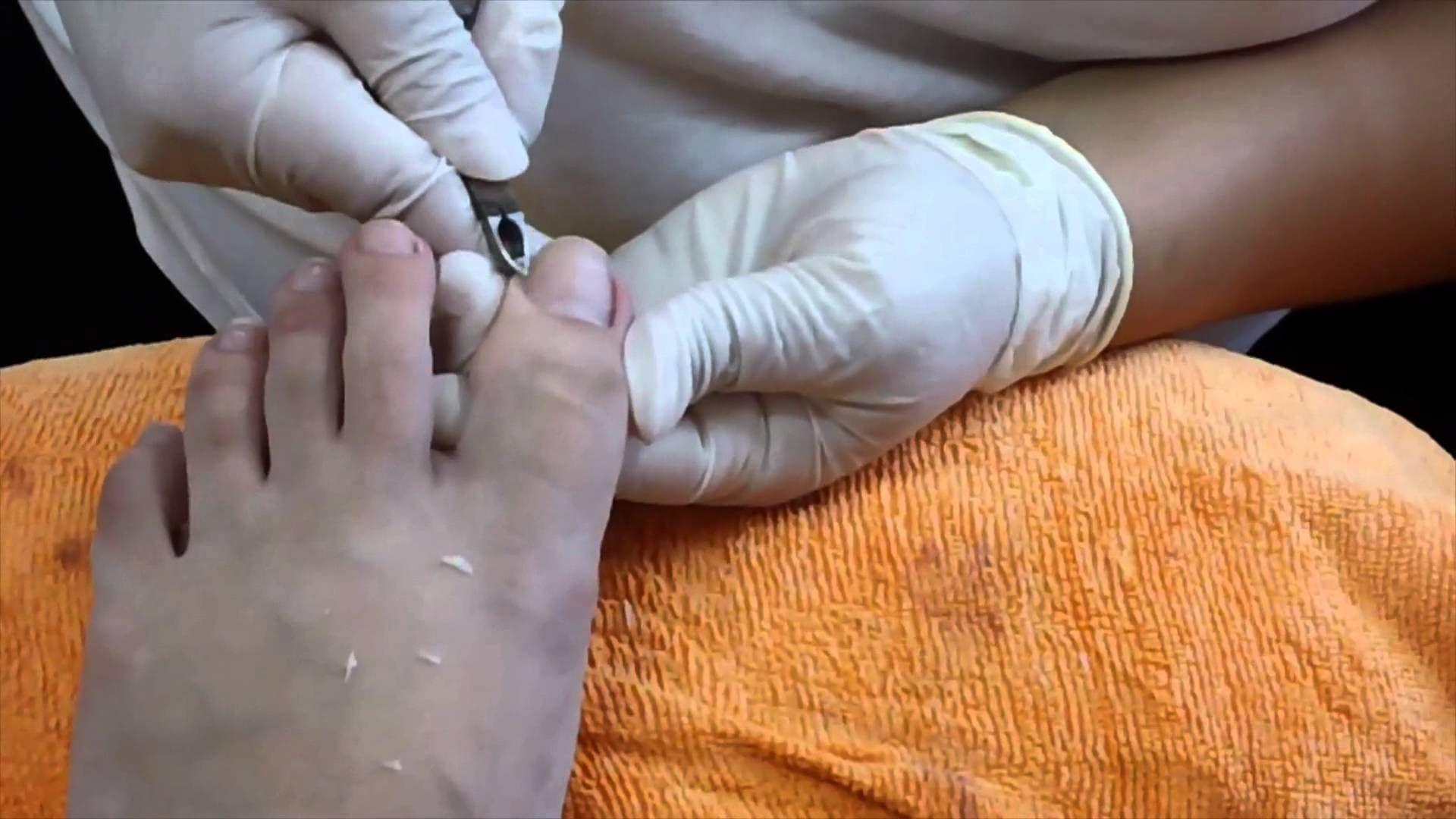 Ingrown Toenail Removal [HD] | skin | Pinterest | Toenail removal