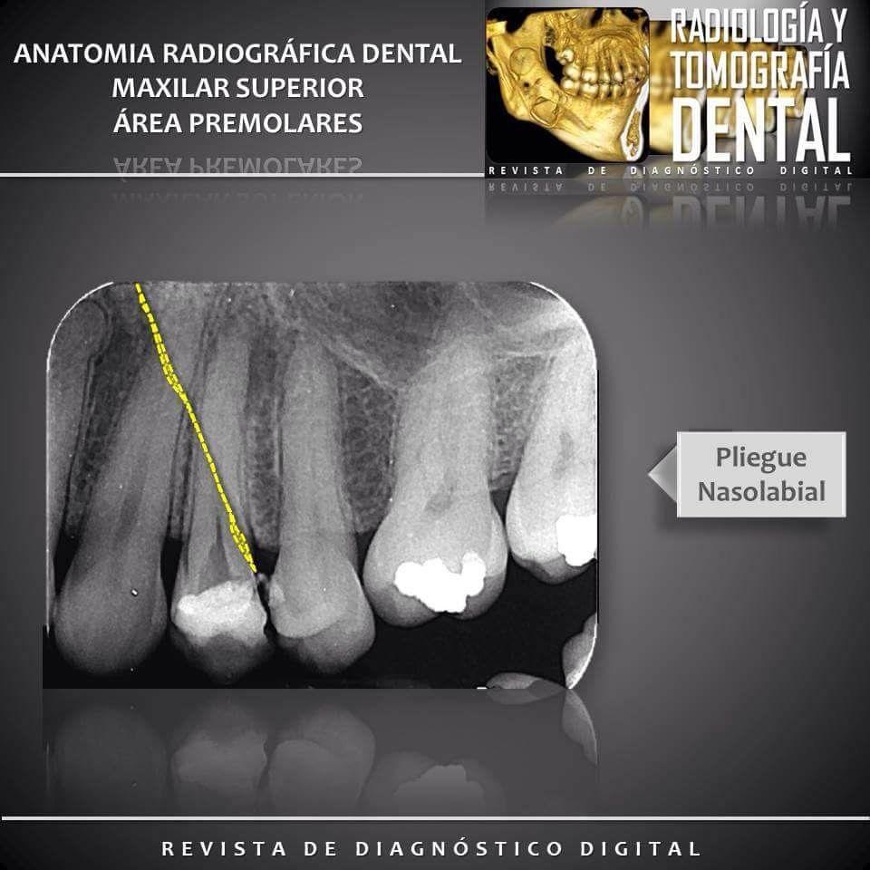 Maxilar Superior - Área Premolares #anatomíadentaria ...