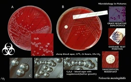 To grow in laboratory culture, peptone-blood base medium is used and grown in a moist environment. M