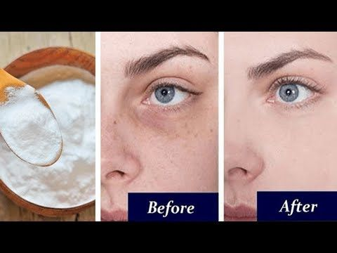 Pin by Summer Time on Skin care 40+ | Remove dark circles ...