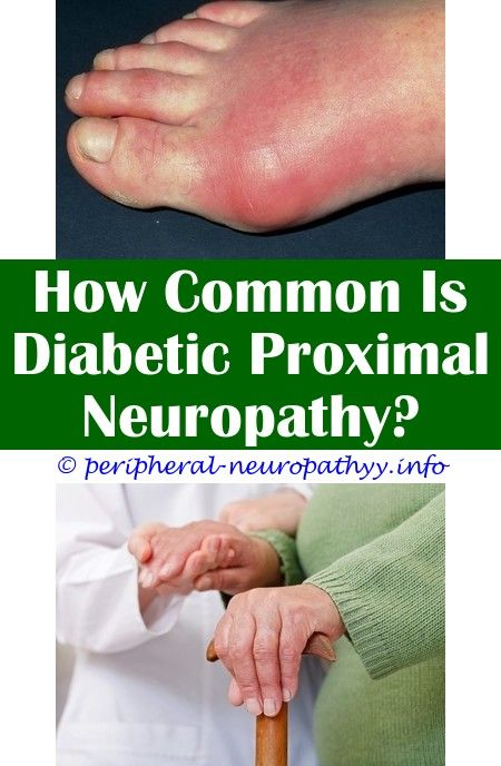 Intercostal Neuropathy | Foot Neuropathy Treatment | Pinterest | Diabetic  neuropathy, Neuropathy treatment and Peripheral neuropathy