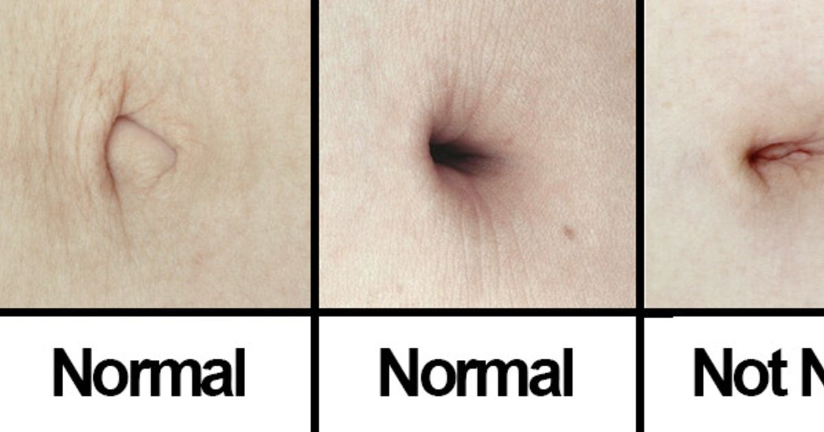 Gross And Disturbing Things To Know About Belly Buttons