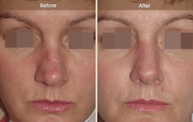 C02 Fractional Laser Skin Resurfacing | Before and After