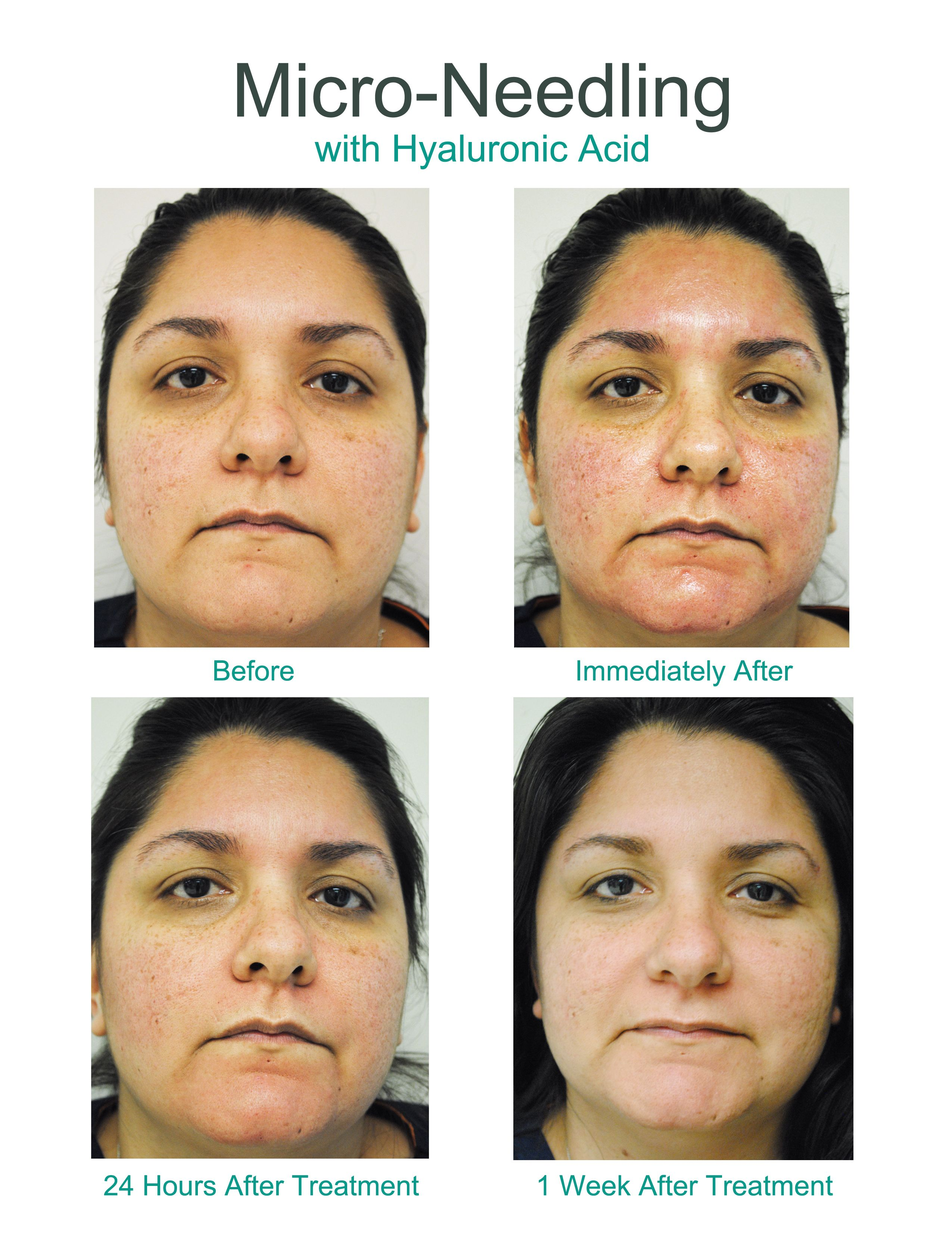 Micro-needling with Hyaluronic Acid before, during, and after