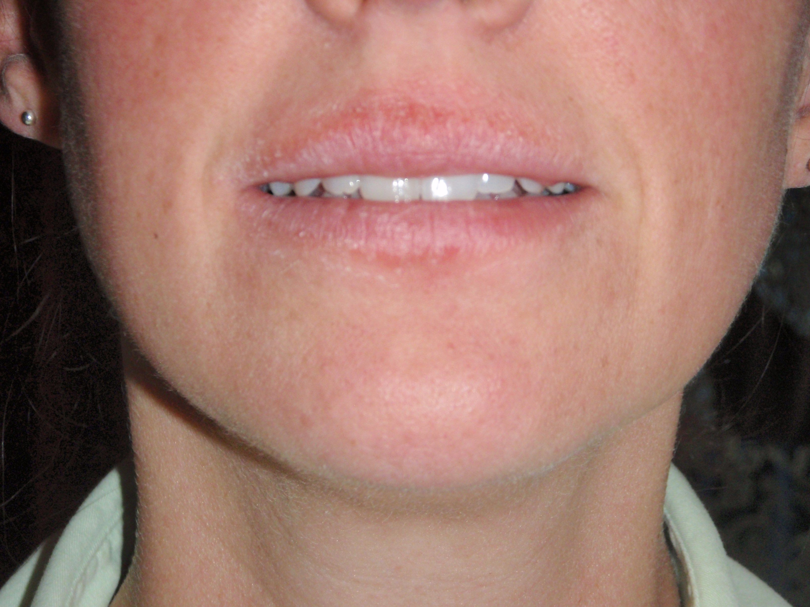 Flaking and peeling of skin around mouth on Day 2 of the rash | Skin ...