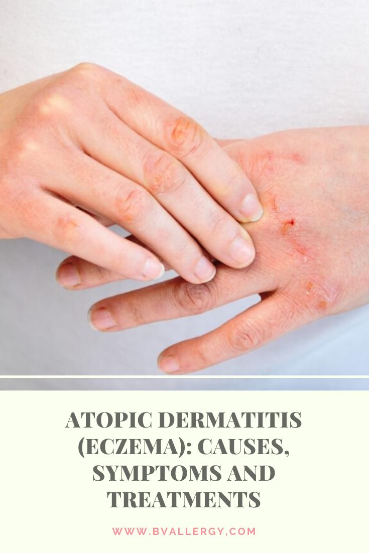atopic dermatitis causes milyen kenőcsöt kell használni a fej psoriasisára