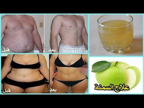 تخسيس البطن و علاج السمنة ب تفاحة واحدة فقط في 7 ايام ستخلصك من 6 الى 14 كيلو في الشهر Youtube Stomach Workout Homemade Remedies Stomach