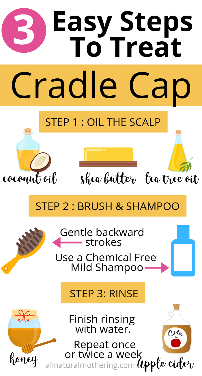 Cradle Cap Is Very Common With Newborn Baby Condition But In Most Cases Your Can Treat Baby Cradle Ca Cradle Cap Cradle Cap Remedies Natural Healing Remedies