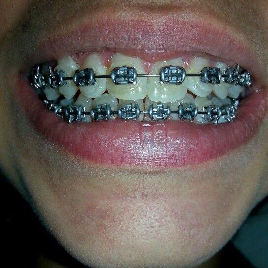 Paziente (A) dopo 11 mesi ortodonzia  fissa