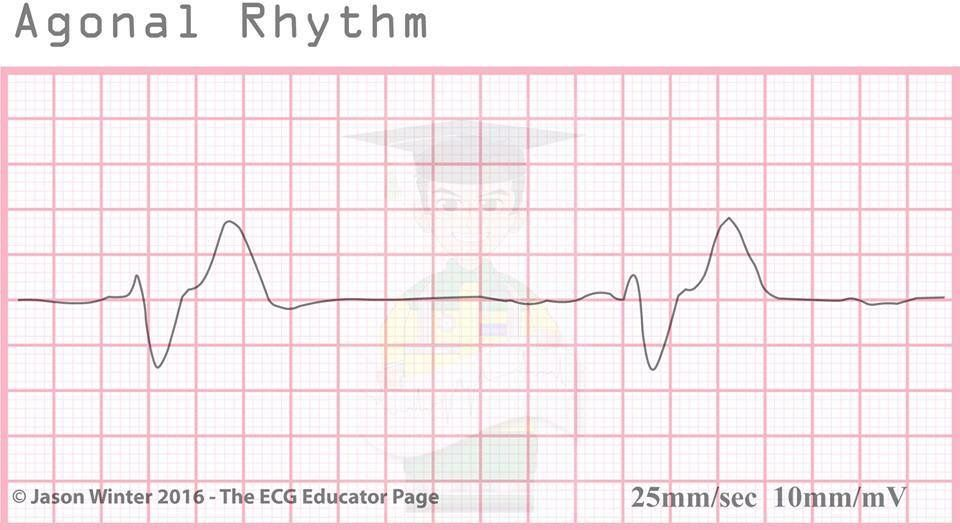 Means agonal ekg strip All