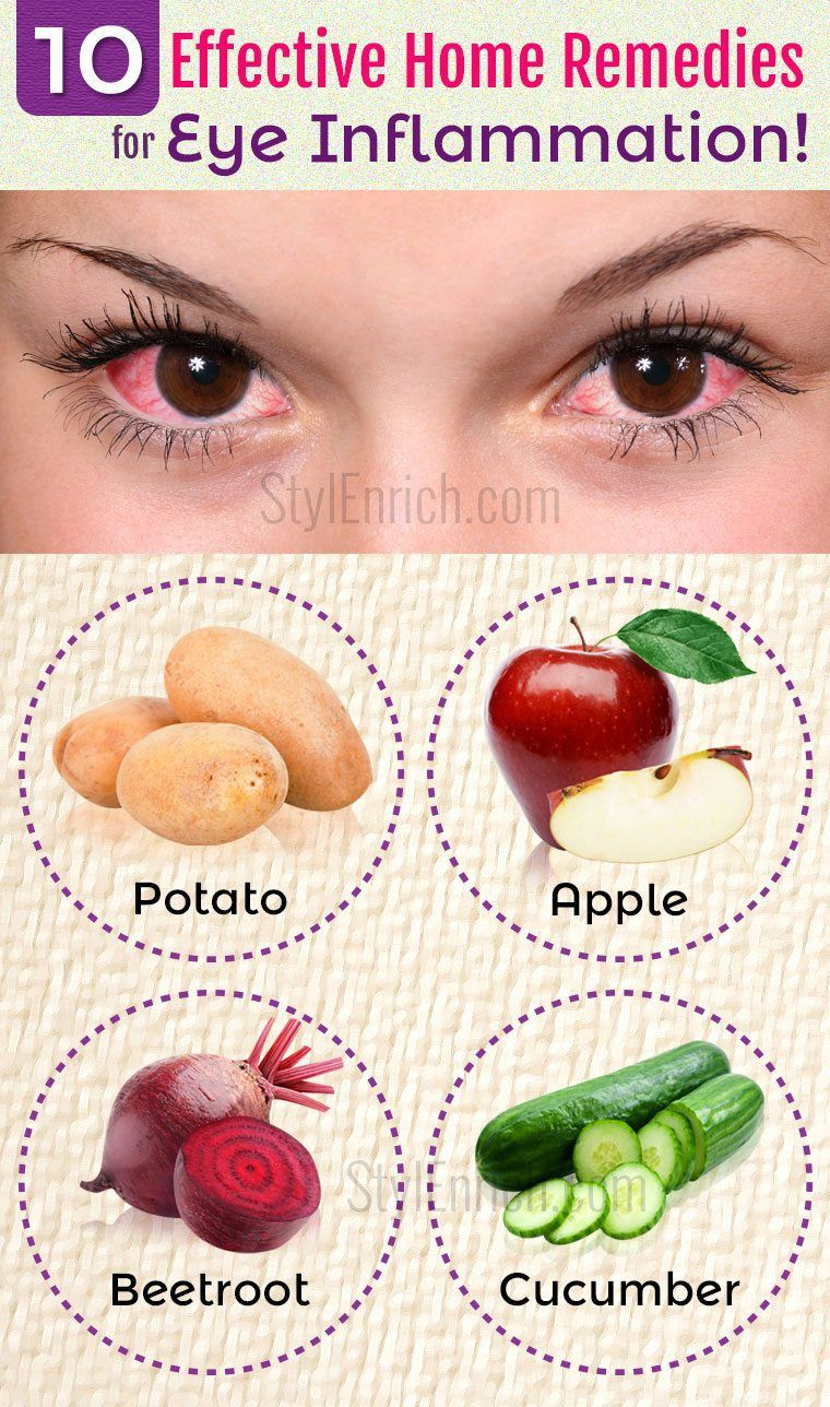 Home Remedies For Eye Inflammation 10 Effective Ways