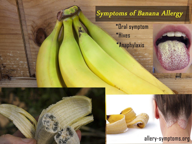allergi banan reaktion