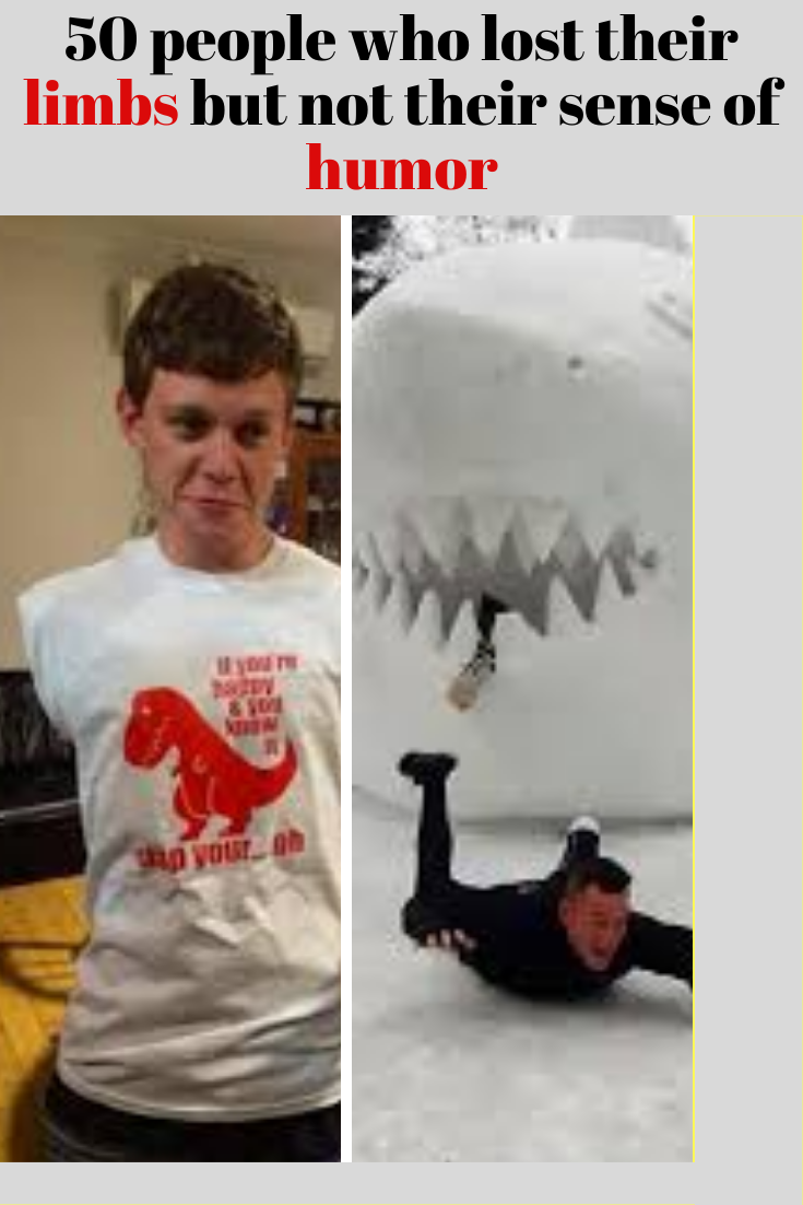 50 People Who Lost Their Limbs But Have No Problem Laughing About It Humor Book Nerd Amazing Photography
