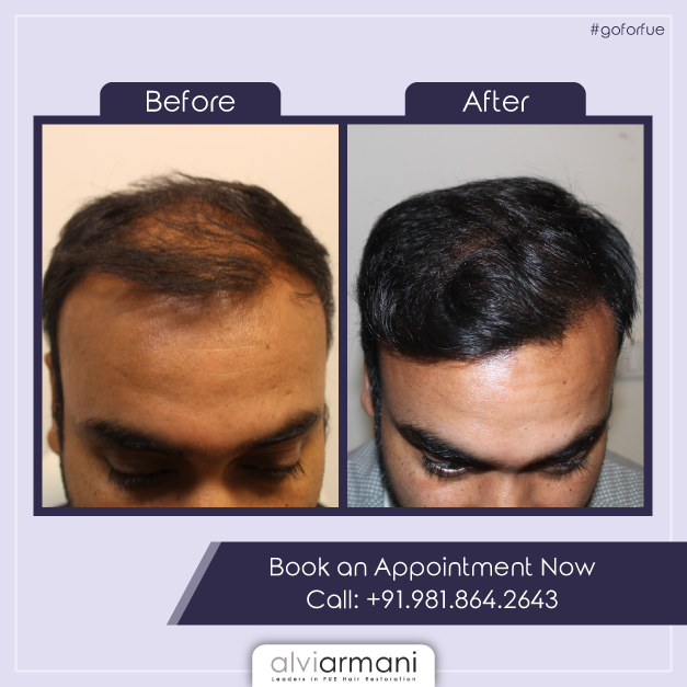We At Alvi Armani India Provides You With A 360 Degree Solution For Hairloss And Lead You To Investigate Th Hair Restoration Best Hair Transplant Armani Hair