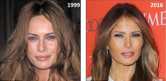 Melania Trump S Plastic Surgery Before And After Photos Reveals Her Squinty Eyed Looks And How Her F Plastic Surgery Plastic Surgery Photos Face Transformation