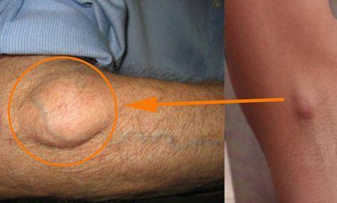 ¿Tienes bolas de grasa en el cuerpo? Debes saber que esta afección se llama…