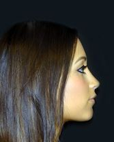 Rhinoplasty Before and After Gallery (Female) - Dr Shahidi - Before and After Gallery (Female) - Dr Shahidi -
