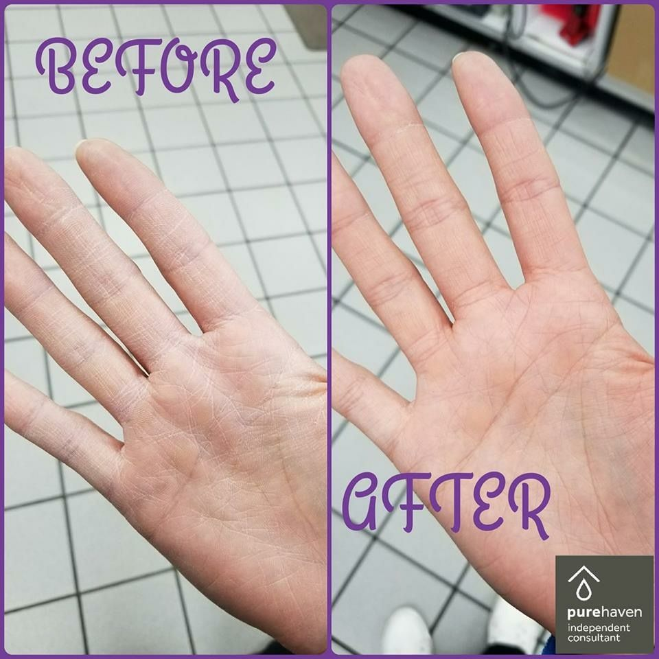 Hands Dry Want A Safer Alternative To Alcohol Hand Sanitizer