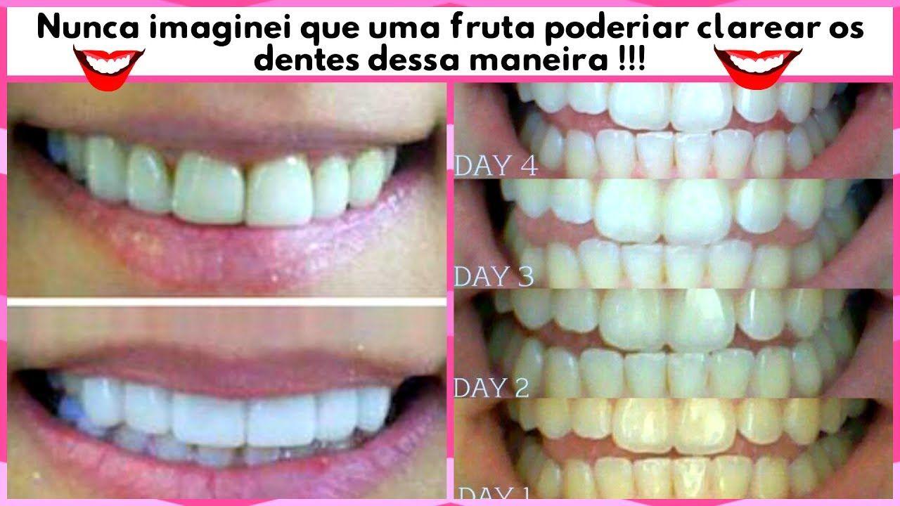 Nunca imaginei que uma fruta tivesse esse poder de clareamento dentário !!!