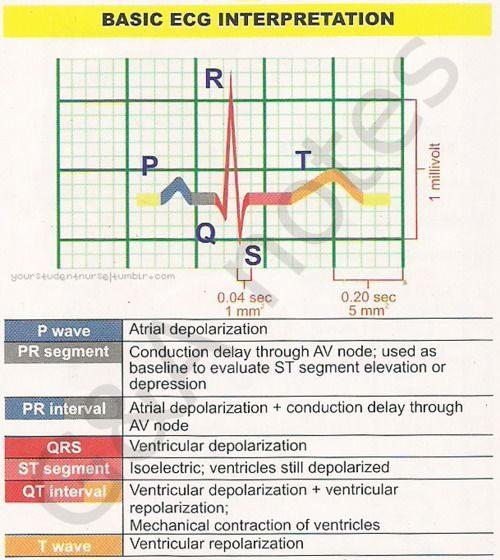 basic ecg interpretation guide nclex study guide pinterest rh pinterest com EKG Practice Test EKG Self Study Guide