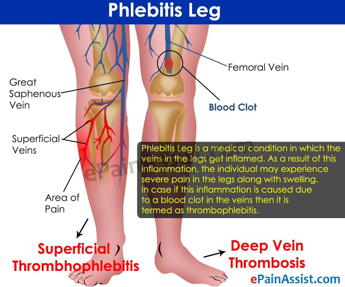 14 Remedies To Prevent Phlebitis forecast