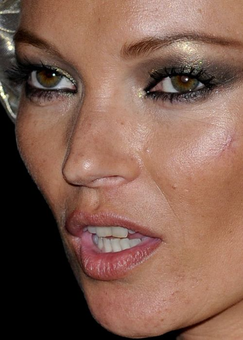 I M Fascinated By This Website Celebrity Close Up Not So Much The Let S Lol At Unflattering Pics Of Slebs Aspect Brunette Makeup Kate Moss Kate Moss News