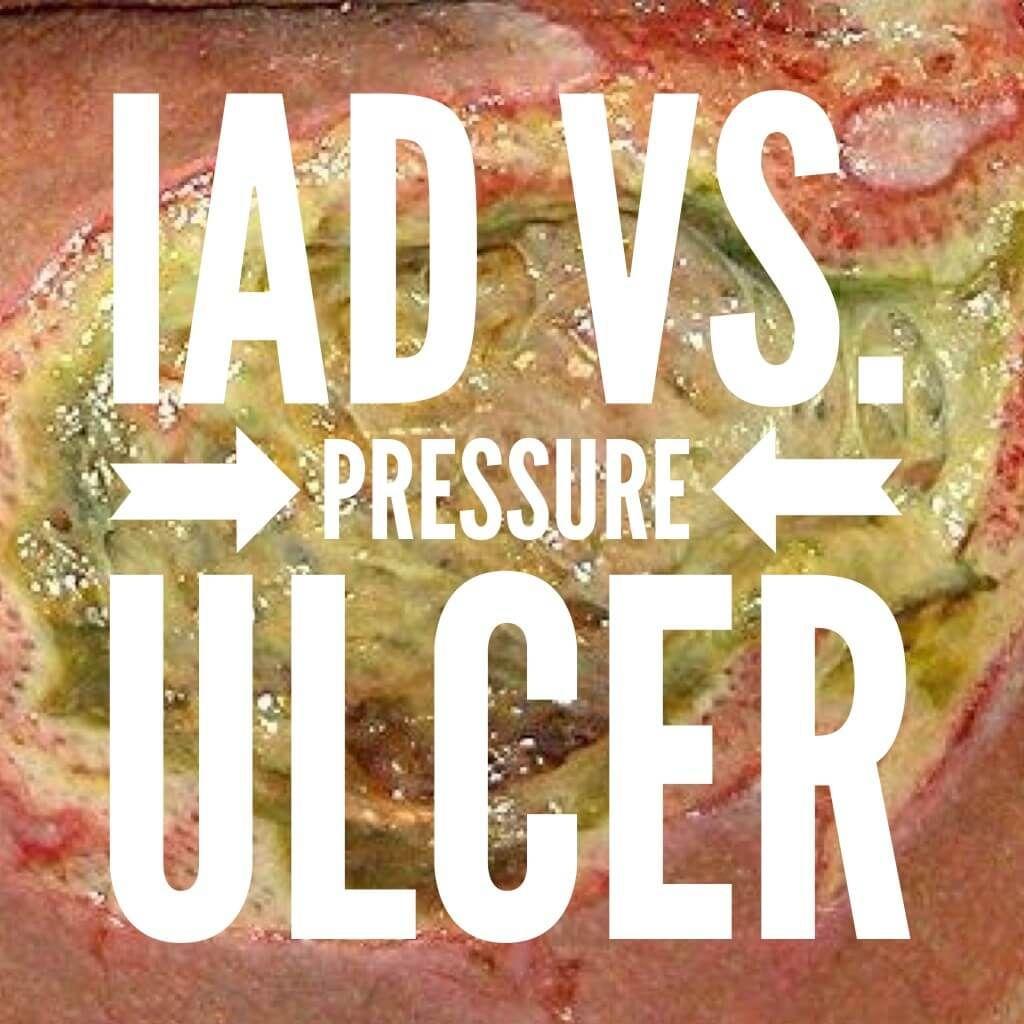Incontinence Associated Dermatitis (IAD) vs Pressure Ulcer