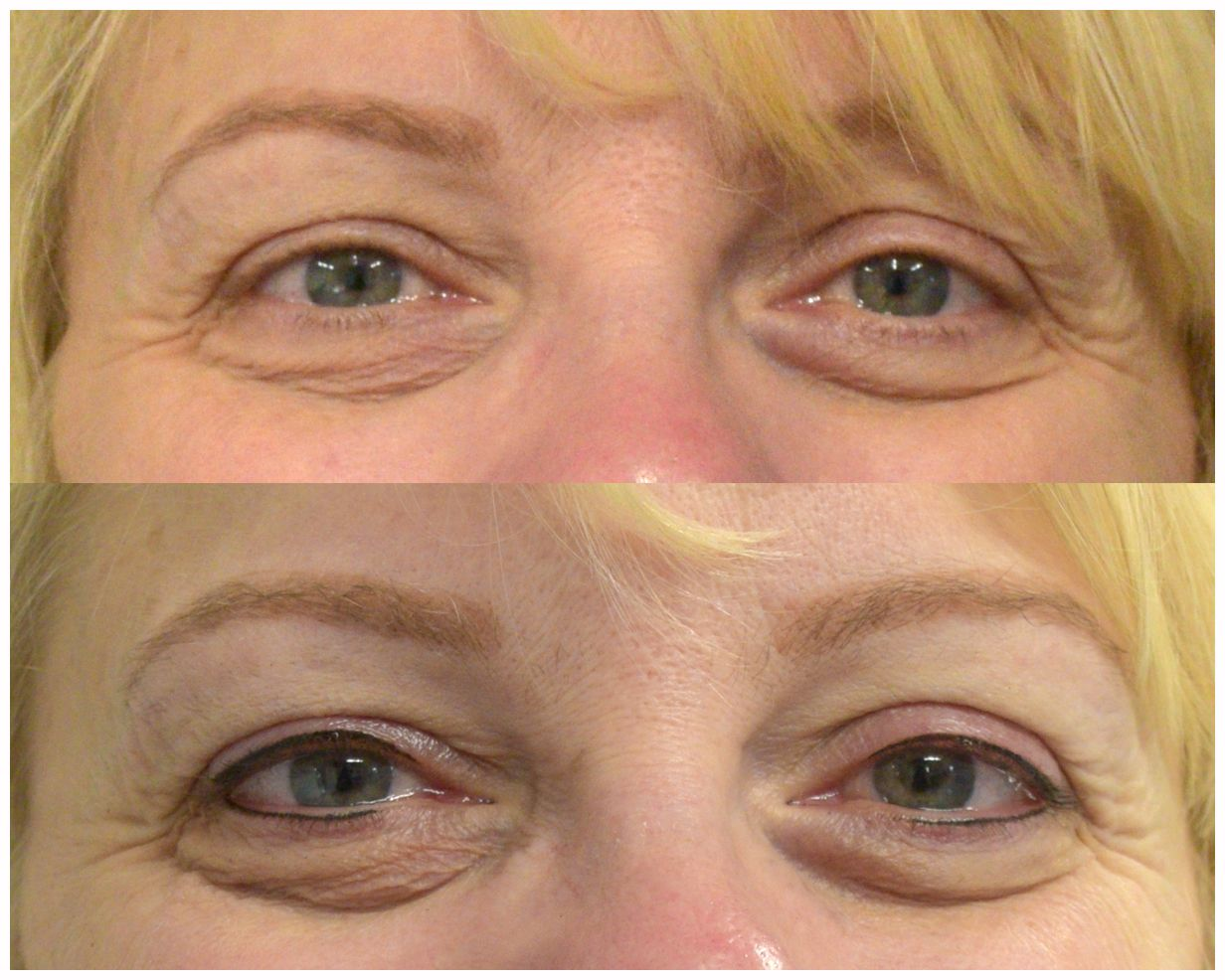 Upper & Lower SemiPermanent Thin Eyeliner Cosmetic
