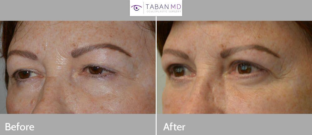 Eyelid Ptosis ( Droopy Eyelid ) Surgery Dr. Mehryar (Ray