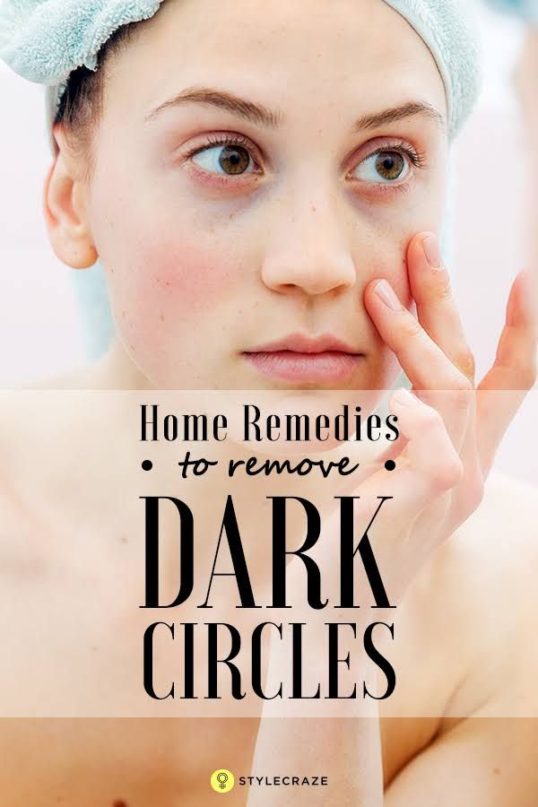 27 Best Home Remedies To Remove Dark Circles Under Eyes ...