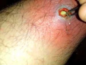 infected ingrown hair on legs | www.lightskincure.org ...