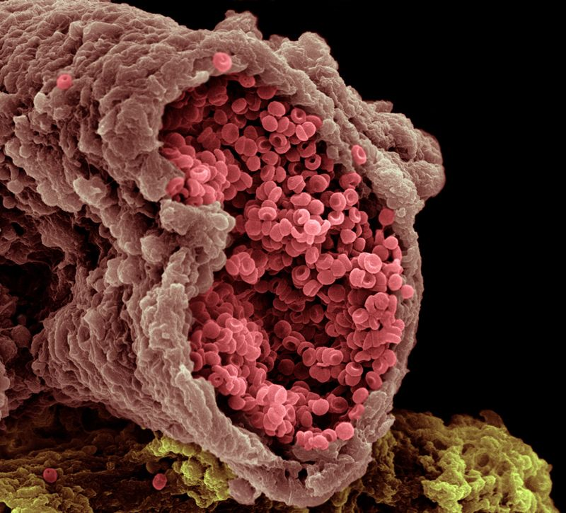 An artery with red blood cells.