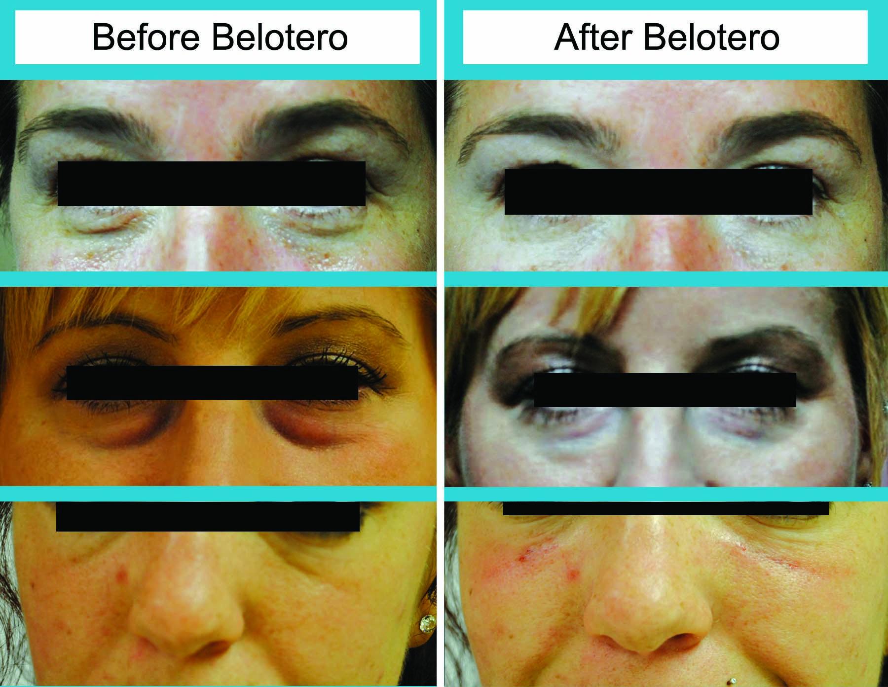 sunken eyes treatment - HD1800×1392