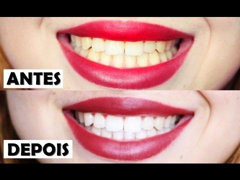 4 Receitas Caseiras Para Clarear Os Dentes Em Minutos