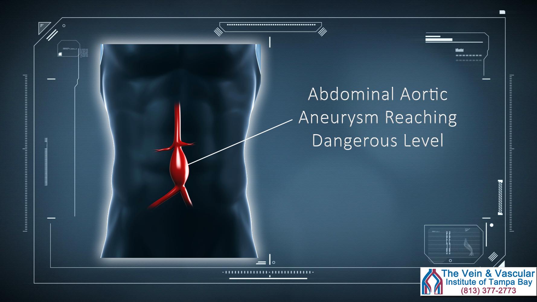 Aortic Aneurysm Surgery In Tampa Top Vascular Surgeons