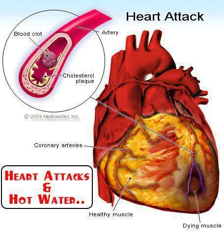 Heart Attacks and Hot Water