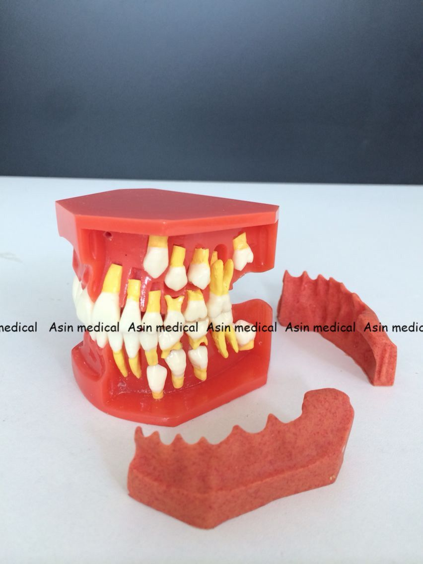 High Quality 2017 New Arrival Dental Tooth Teeth Anatomical Anatomy